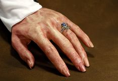 кровопролитная рука Стоковое Фото
