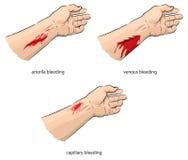 кровотечение иллюстрация штока
