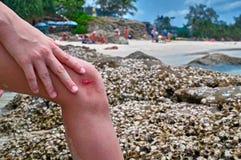 Кровоточить на мальчике колена Ребенок ранил ногу против кораллового рифа и клал его руку на его раненую ногу Скорая помощь конце стоковые фото