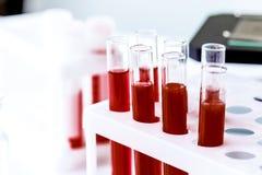 Кровь в стеклянных лампах на предпосылке микроскопа стоковые изображения