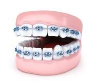 Кронштейны зуба и челюсти на белой предпосылке Стоковые Изображения