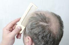 Крупный план лысой задней части головы и деревянного гребня Человек делая его волосы стоковая фотография