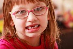 Крупный план девушки в eyeglasses без 2 зубов Стоковое фото RF