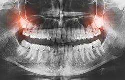 Крупный план концепции боли зубов премудрости изображения рентгеновского снимка растущей Стоковое Изображение