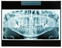 Крупный план челюсти рентгеновского снимка человека для зубоврачебного доктора зубов Стоковая Фотография RF