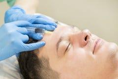 Курс mesotherapy клиники стоковая фотография rf