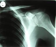 левый рентгеновский снимок стоковое изображение rf