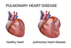 Легочная сердечная болезнь иллюстрация вектора
