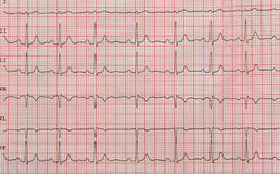 Лента с cardiogram Стоковое Фото