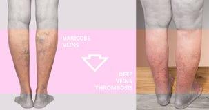 Лимб Hyperpigmented более низкий вторичный к венозной недостаточности стоковые фото