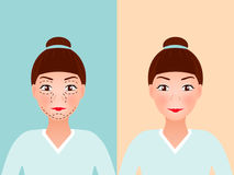 Линии прокалывания чертежа на молодой милой стороне ` s женщины для пластической хирургии Перед и после процедурой вектор Стоковая Фотография RF