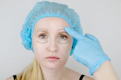 Лицевые пластическая хирургия или подтяжка лица, подтяжка лица, коррекция стороны Пластический хирург рассматривает пациента пере стоковая фотография rf
