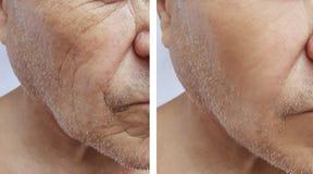 Лоб лицевого пожилого человека терпеливый сморщивает сторону терапией медицины влияния впрыски antiaging перед и после процедурам стоковое фото