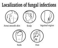 Локализация грибковых инфекций Стоковые Фотографии RF