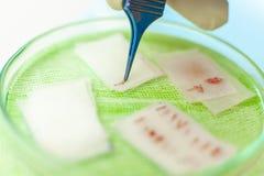 Луковицы волоса в конце-вверх чашки Обработка плешивости Трансплантат волос Хирурги в операционной уносят волосы стоковая фотография rf