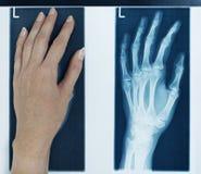 луч изображения руки левый x Стоковые Изображения