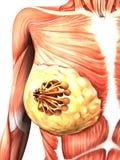 луч рака молочной железы x иллюстрация штока