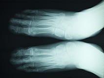 луч рентгенографирования x Стоковая Фотография RF