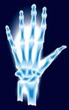 луч руки x иллюстрация вектора