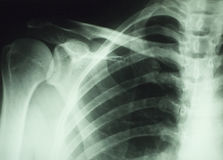 луч частей тела x Стоковое фото RF