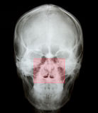 Луч x носового перелома кости Стоковые Фото