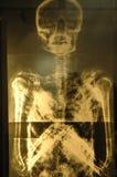 луч x Стоковая Фотография RF