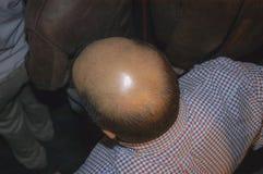 Лысая голова Стоковое Изображение