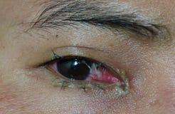 Люди заболевание глаза стоковое изображение rf
