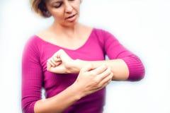 Люди, здравоохранение, дерматология, аллергия и проблема здоровья conc стоковая фотография rf
