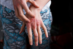 Люди крупного плана зудя и царапая вручную Псориаз или eczema на руке Кожа атопической аллергии с красными пятнами Стоковая Фотография