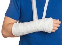 Люди с заштукатуренной рукой Стоковая Фотография RF