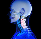 Людская боль шеи Стоковые Фото
