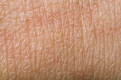 Людская кожа стоковые фото