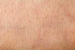 Людская кожа Стоковое Изображение