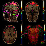 магниторезонансное мозга функциональное Стоковая Фотография