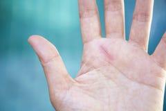 Малый шрам отрезка на руке девушки Стоковое Изображение RF