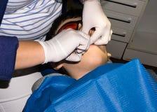 Мальчик в зубоврачебной обработке мальчика здоровье внимательности рукояток изолировало запаздывания Стоковые Фото
