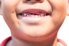 Мальчик с разваленными зубами младенца стоковая фотография rf