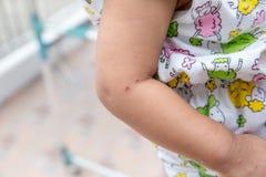 """Мальчик с симптомами заболевание вручает, ноги и рта дети """"HFMD """"с заболеванием Заболевание ноги рта и рта причиненное напряжение стоковое фото rf"""