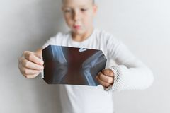 Мальчик с сломленной рукой смотрит рентгеновский снимок Рентгеновский снимок в руках унылого мальчика с сломленной рукой Стоковое Изображение RF