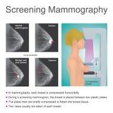 Маммография скрининга иллюстрация штока