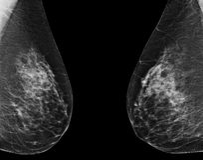 маммография Стоковое фото RF
