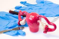 Матка и концепция хирургии завязей генитальная женская Модель матки и завязи приближают к скальпелю, хирургическим перчаткам и тр стоковые изображения rf