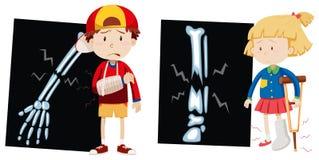 Мальчик и девушка с сломленными косточками иллюстрация вектора