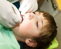Мальчик на зубоврачебном рассмотрении стоковое фото rf