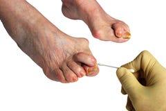 Медицина, bunion valgus, нога с Bunion hallux valgus уродства, Стоковое Изображение RF