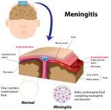 менингит Стоковое Изображение RF