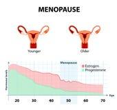 Менопауза или климактерическое иллюстрация вектора
