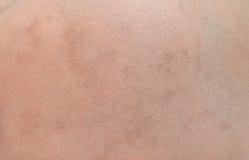 4-месяц-старыми кожа младенца побритая волосами Стоковые Фотографии RF