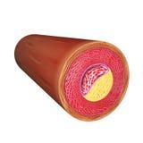 Металлическая пластинка артерии атеросклеротическая Стоковая Фотография RF